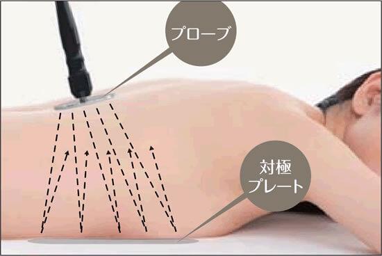 プローブから発生する高周波が対極のプレートに反射